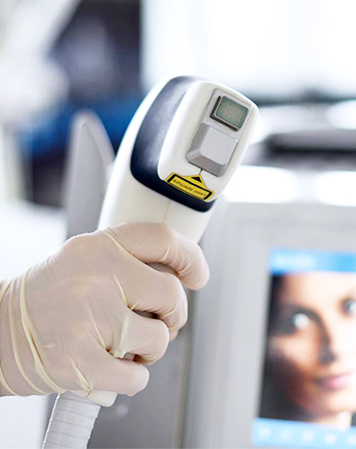 Лазерное лечение акне Mediostar Next Pro (Asclepion)