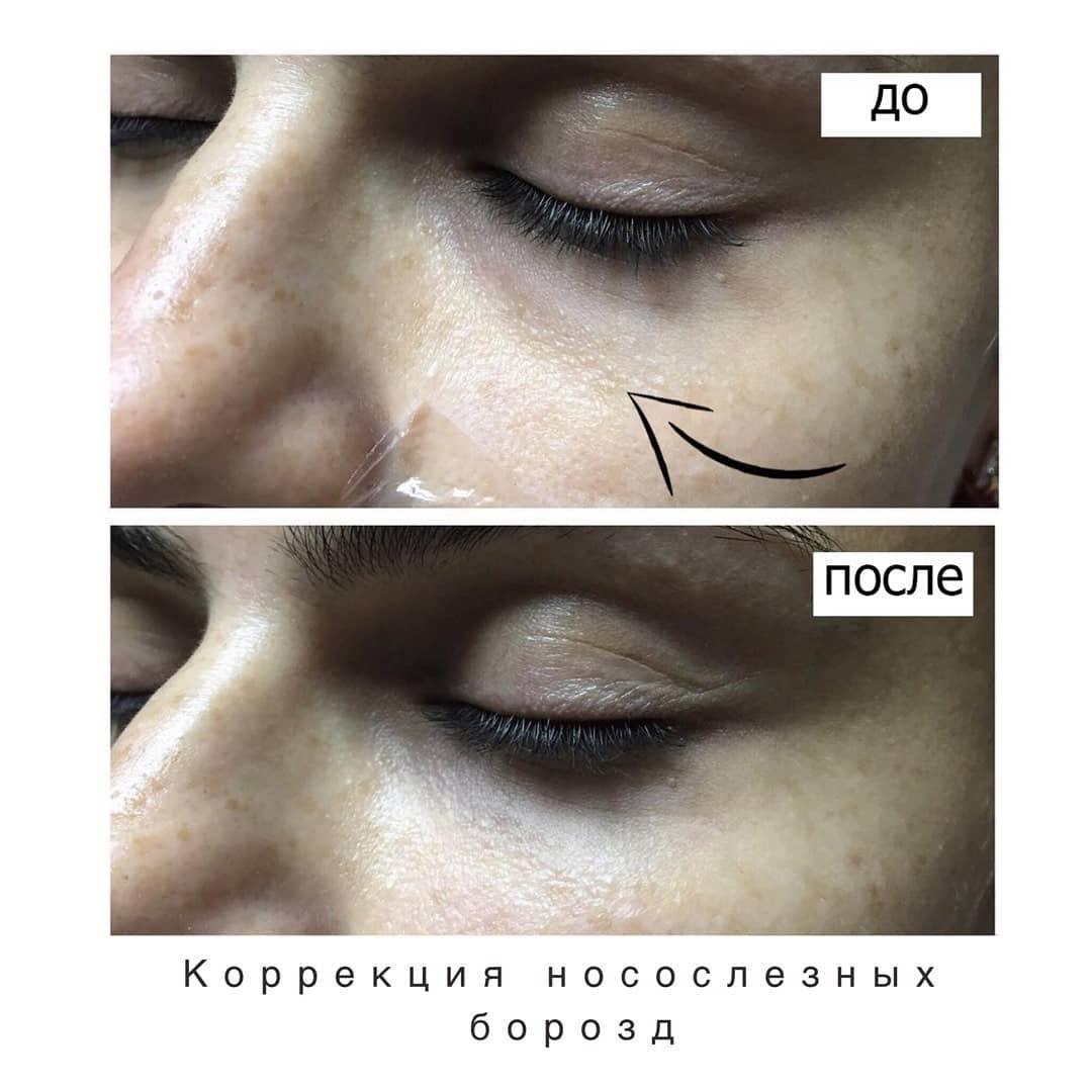 Коррекция носослёзных борозд
