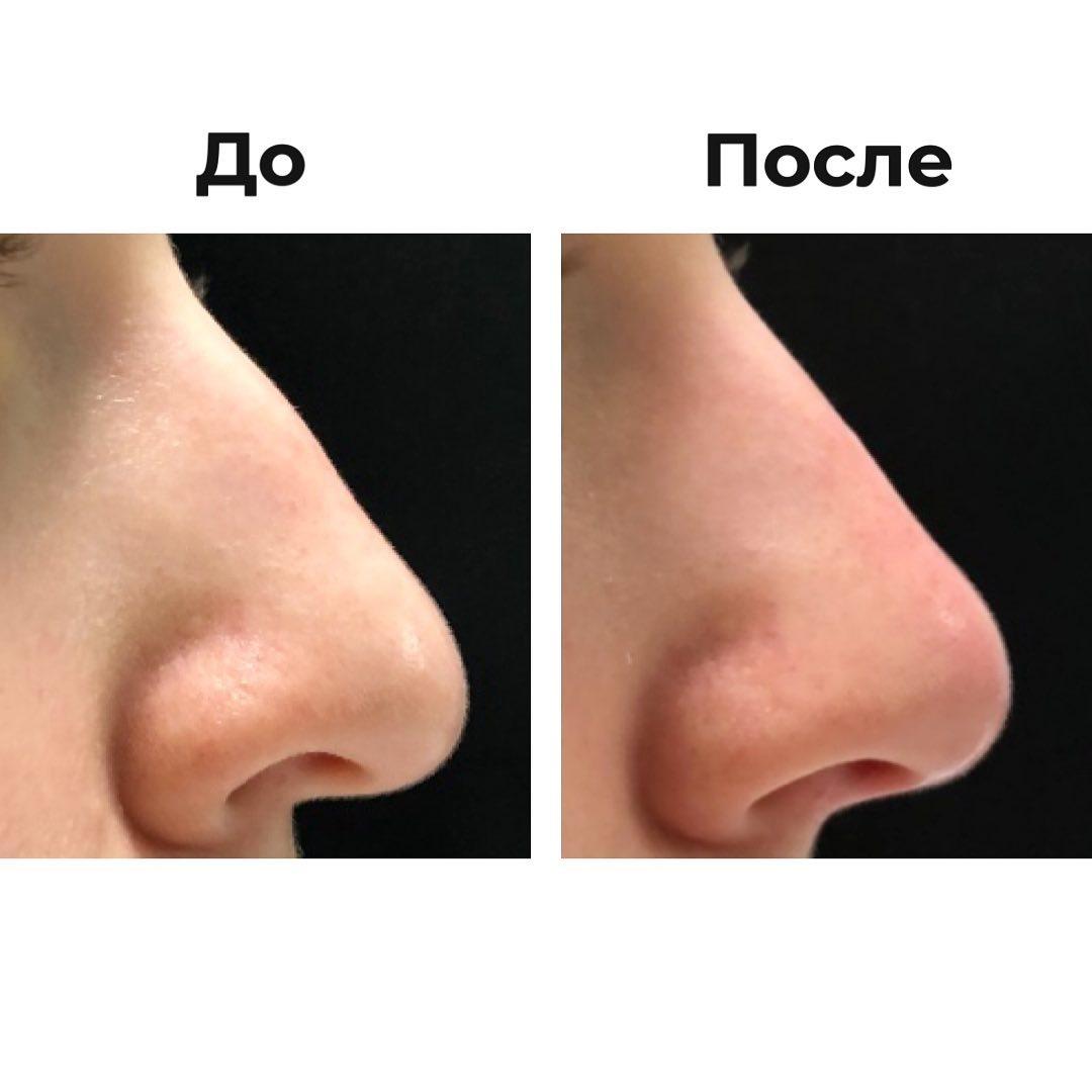 Коррекция формы носа